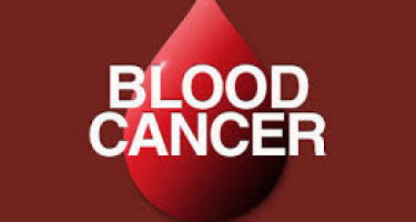Blood cancer and stem cell transplants